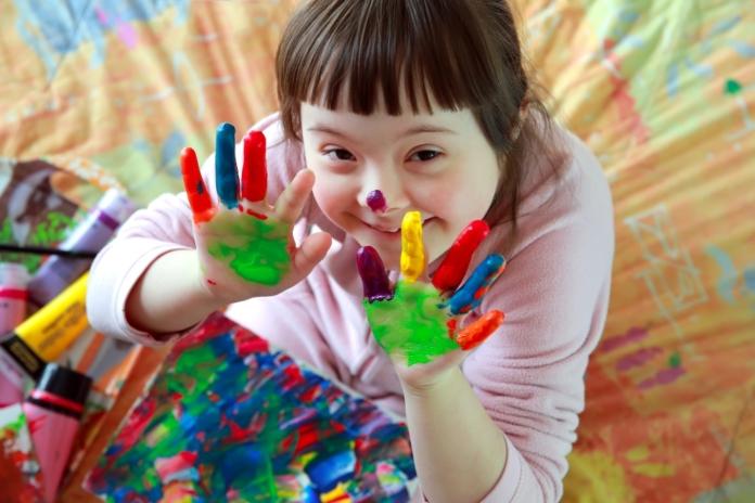 Zastrašujući podaci: Island 'iskorjenjuje' djecu s Downovim sindromom pomoću pobačaja